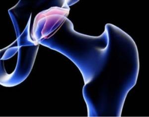 Artrosi-anca